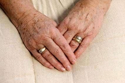 Altersflecken, akzeptabel oder entfernen?
